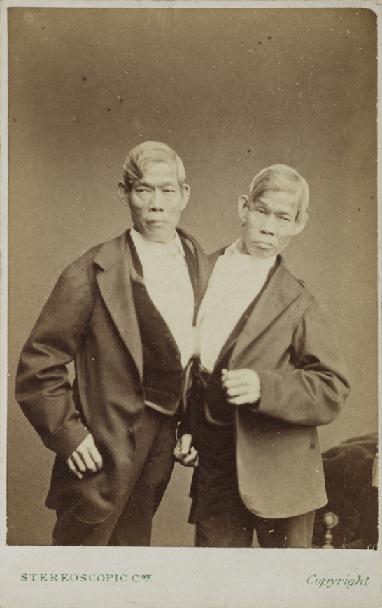 The Siamese Twins, Eng and Chang Bunker, c.1870, London Stereoscopic & Photographic Company, National Media Museum Collection