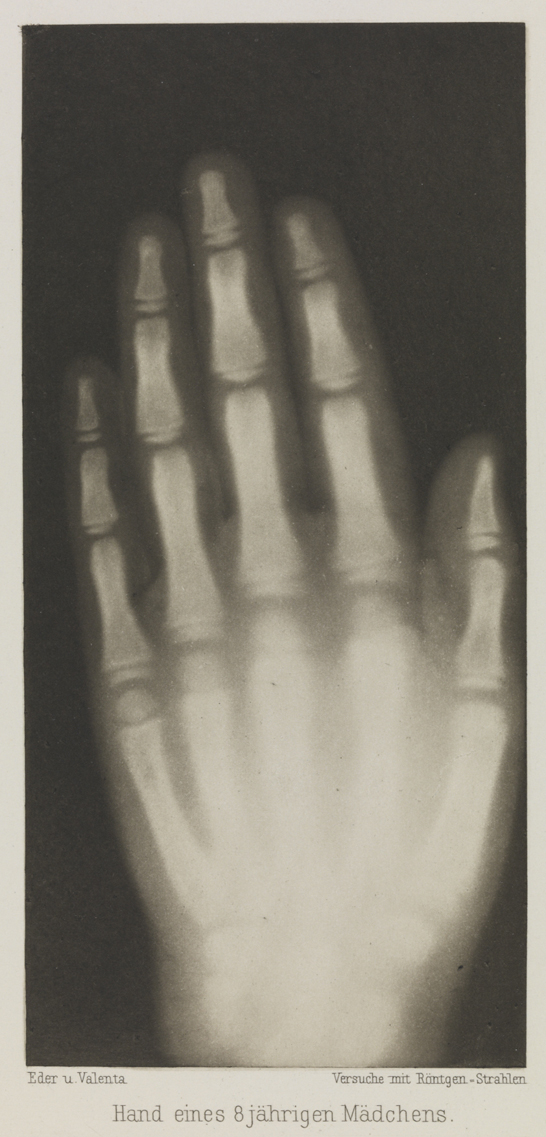 Hand eines 8 jährigen Mädchens, 1896, Eduard Valenta and Josef Maria Eder, National Media Museum, Bradford / SSPL. Creative Commons BY-NC-SA